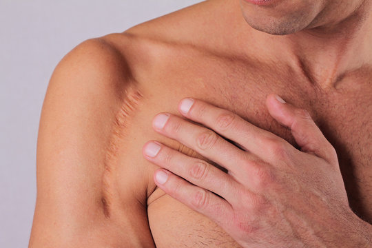 Man  man with scar on his  hand shoulder. Laser Scar Reduction concept