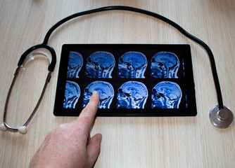 Tablet Arzt Stethoskop Hirn