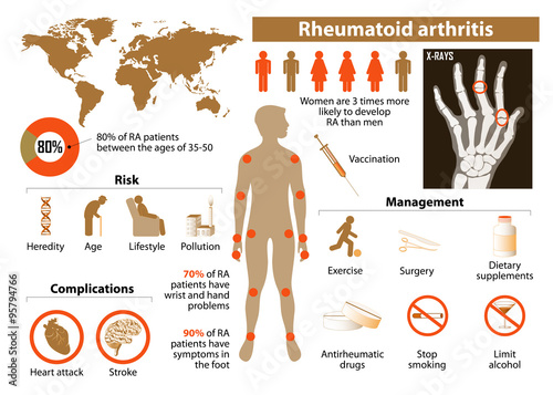 rheumatoid arthritis Learn more about this auto-immune disease and discover all the information you need to know about rheumatoid arthritis.