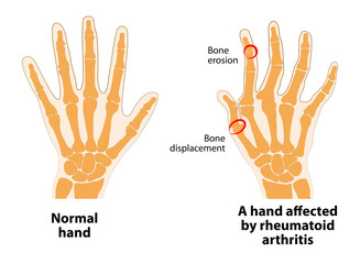 Normal hand and Rheumatoid Arthritis