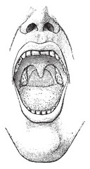 Tonsils, vintage engraving.
