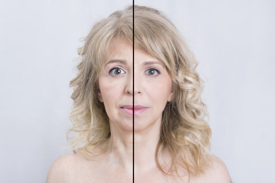 Before and after shot of a blonde woman