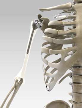 3D arm and shoulder prothesis illustration