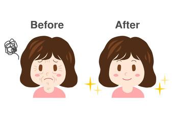 女性 シワ イラスト before after