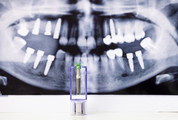 Dental Implant and x-ray picture as background