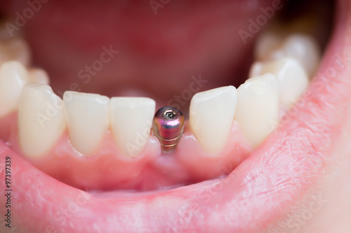 molar tooth implant - 650×400