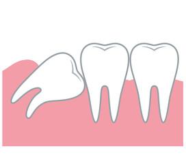 親知らず 歯 医療