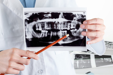 Panoramic dental X-Ray in hand.