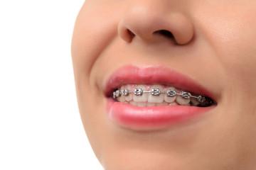 Healthy smile - teeth with dental braces
