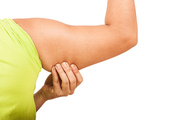 women show fat wrinkle of armpit isolate background