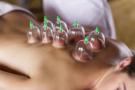 Woman with cupping treatment on back