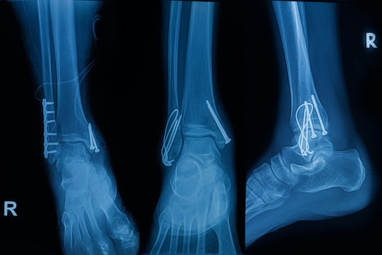 Collection of human x-rays  showing fracture of right leg ( fracture both bones )