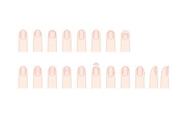 手の爪の形とトラブル