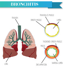 Healthy and inflamed bronchus. Chronic Bronchitis.