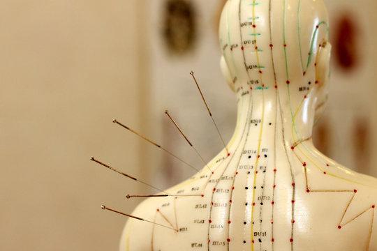 Akupunktur als Alternativmedizin