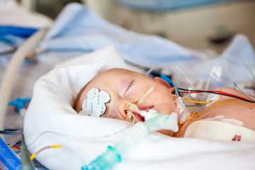 Infant boy sedated in intensive care unit after heart surgery.