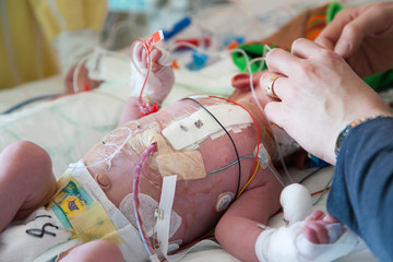 Intensive care after heart surgery, infant child and caring hands helping.