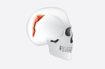 Human have any break in the cranial bone which called skull fracture. This is medical illustration.