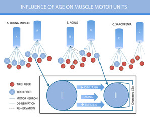 Infographics: influence of age on muscle motor units
