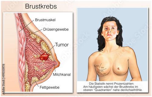 3 Carbinol und Brustkrebs