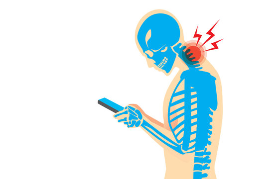 Neck bone and muscles have pain because smartphone addiction and play long time.