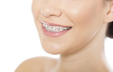 Beautiful young woman wearing braces