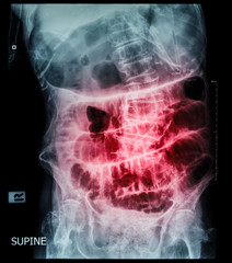Small bowel obstruction ( film x-ray abdomen ( supine position ) : show small bowel and stomach dilate ) ( step ladder pattern )