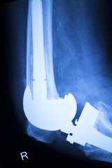 Knee joint implant x-ray test scan