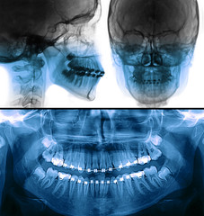 fixed appliance x-ray, orthodontic treatment