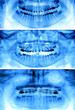 Types of fixed appliances used for orthodontic treatment