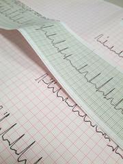 elettrocardiogramma al cuore