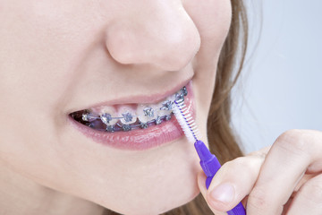 Dental Hygiene Concepts. Closeup Shot of Caucasian Teenage Girl Using Bristle Teeth Brush for Teeth Brackets