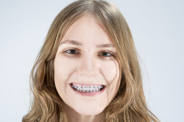 Caucasian Teenage Girl Showing Her Teeth Brackets