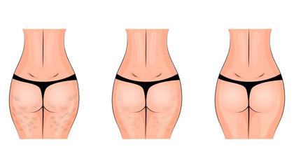 cellulite, cellulitis. buttocks