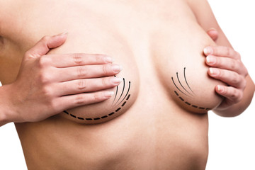 Breast  correction. Plastic surgery