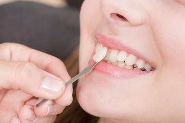 Beim Zahnarzt: Zahnfarbe für Krone vergleichen