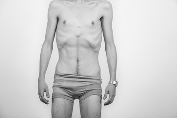 Young man with anorexia nervosa problem.