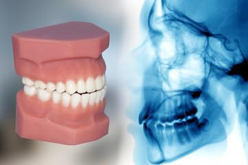 teeth model and x-ray