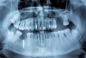 Dental x-ray with periodontitis problems, decayed teeth and impl