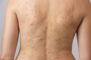 Young girl with acne, with red and white spots on the back