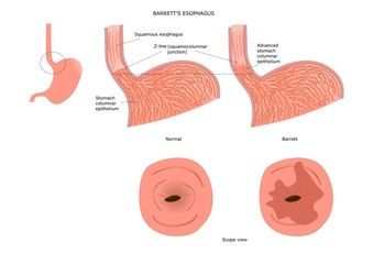 Barrett's esophagus: inflamed and injured portion of the esophagus