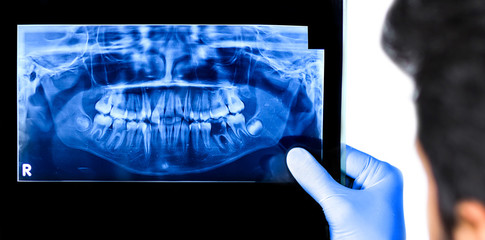 Dentist holding & viewing full mouth X-ray of a patient isolated in white background