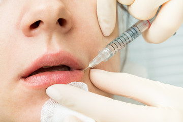 The real procedure is the injection of hyaluronic acid into the lower lip to increase. Contour. Injections of beauty.