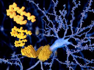 Beta Amyloid-Peptid, Plaques, Alzheimer Krankheit. Die Amyloid-Peptid Moleküle aggregieren zu Amyloid-Plaques, die zur Degenerarion der Neuronen zu führen scheinen.