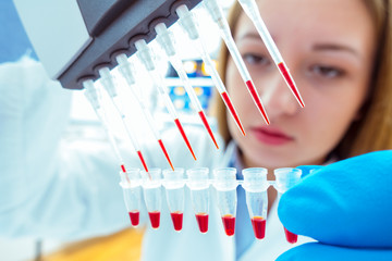 woman assistant in laboratory with multi pipette in the clinic,