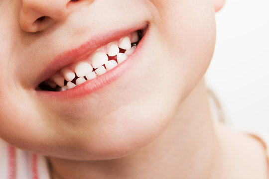 baby smile close. child teeth on a white isolated background.