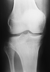 X-ray picture of knee