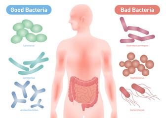Good Bacteria and Bad Bacteria, enteric bacteria, Intestinal flora, Gut flora, probiotics, image illustration