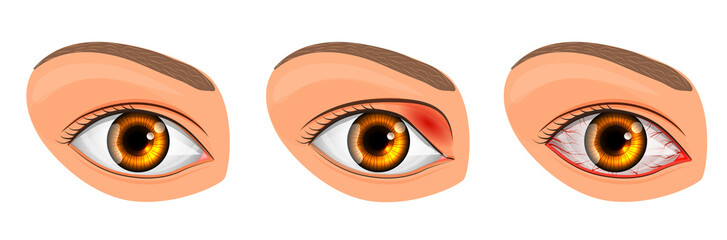 eye suffering from conjunctivitis and styes