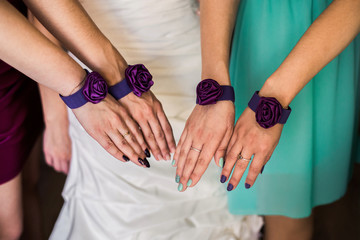 Women's hands with bandages, bridal jewelry, bridesmaid, wedding preparation, the morning of the bride, bride's fees